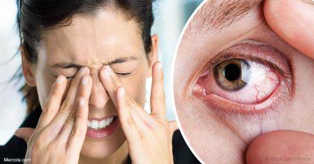 Mắt nhức mỏi sợ ánh sáng có thể do khô mắt