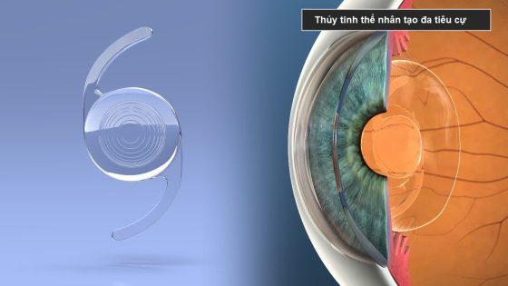 Thủy tinh thể nhân tạo đa tiêu cự dùng trong trị đục thủy tinh thể