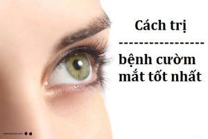 Cách trị bệnh cườm mắt tốt nhất hiện nay