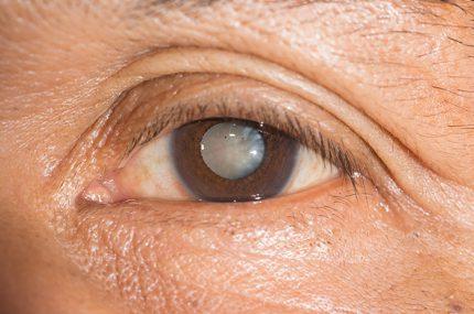 Đục thủy tinh thể quá chín có thể mổ nhưng khó cải thiện thị lực