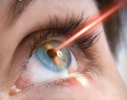Đục bao sau đã chiếu laser vẫn có thể tái phát