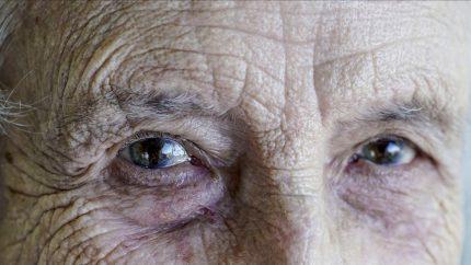 Thay thủy tinh thể bằng phương pháp phaco mắt có thể vẫn mờ