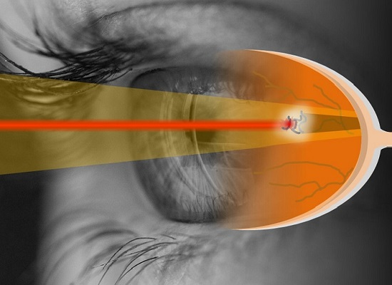 Chữa đục dịch kính bằng laser có thể gây biến chứng nguy hiểm cho mắt