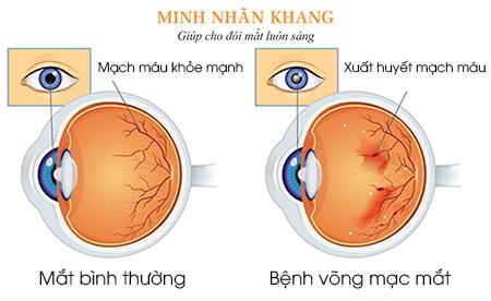 Bệnh võng mạc mắt là tình trạng võng mạc bị tổn thương gây suy giảm thị lực